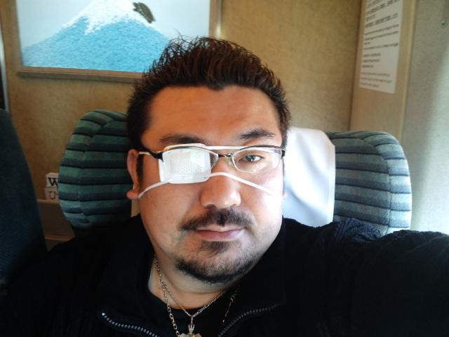 An eye patch...